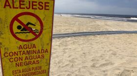 Pollution warning sign in Imperial Beach, a region that has suffered from nearly constant sewage flows from Mexico since last November.  Picture taken on May 5, 2020.