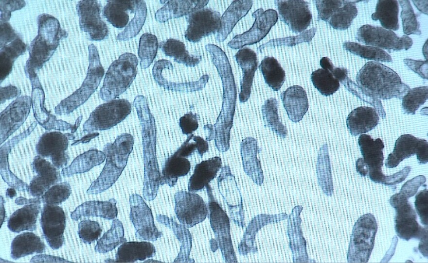 A microscopic view of the worms that cause schistosomiasis, taken on August 20, 2015.