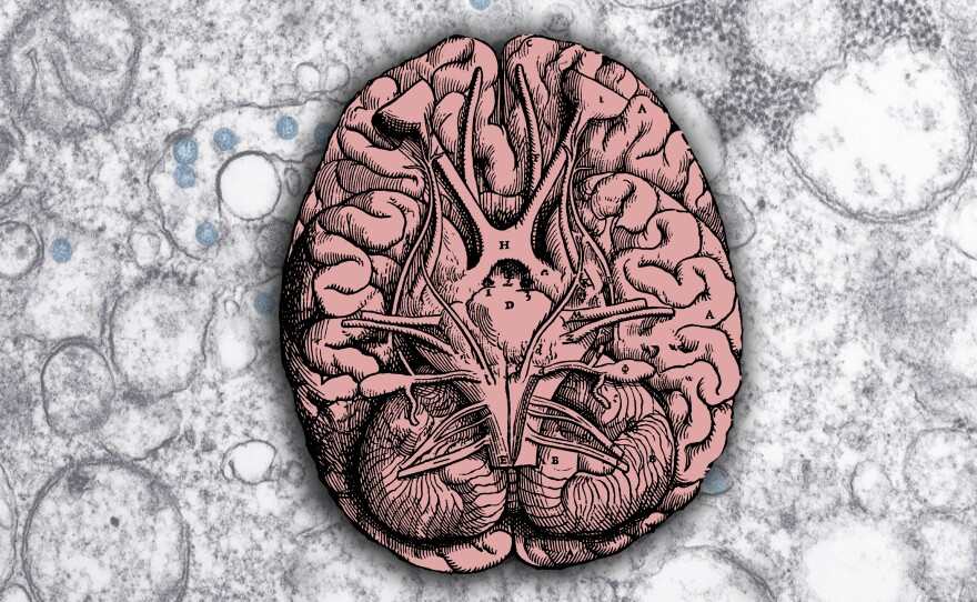 Doctors and scientists are discovering neurological complications from COVID.