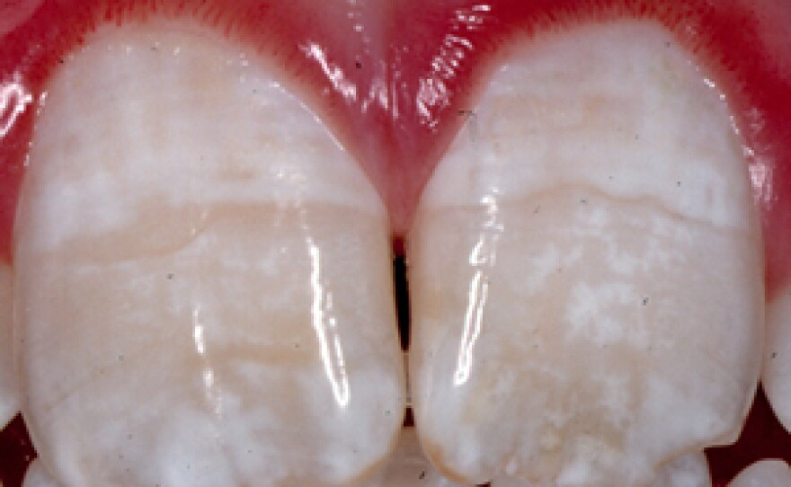 Mild forms of dental fluorosis (shown in teeth pictured above) are increasingly common, according to the American Dental Association, and cause teeth to become discolored, most often with white streaks.