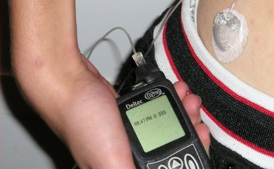 Insulin_pump_with_infusion_set.jpg