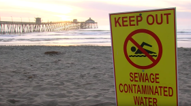 A beach closure sign is posted at Imperial Beach due to water pollution, Feb. 13, 2017.