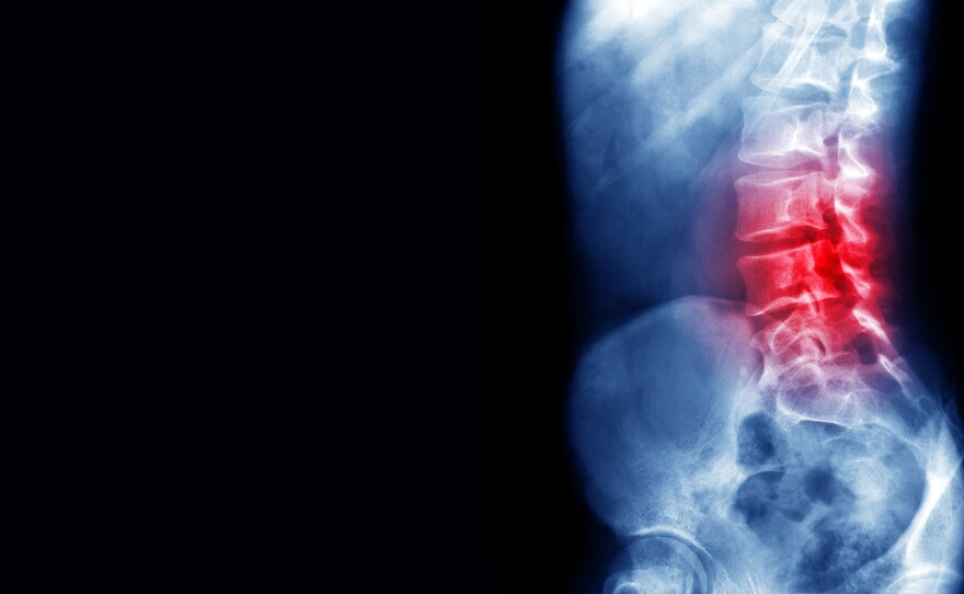 Ineffective Treatment Often Prescribed For Lower Back Pain, Report Says