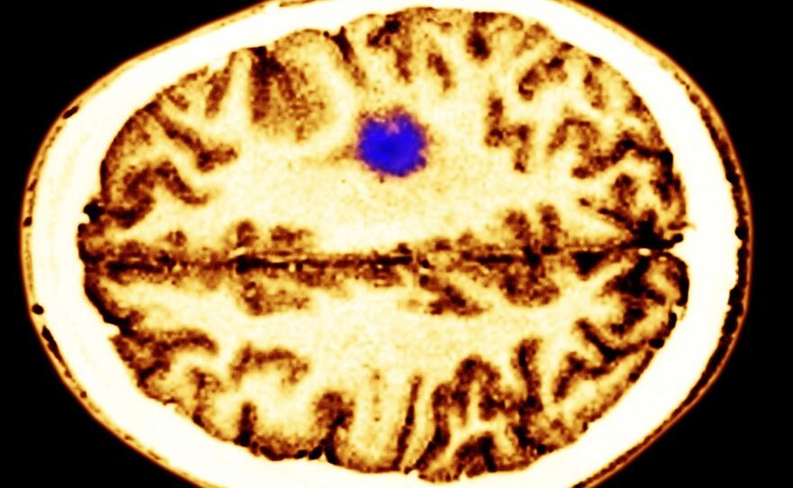 A color-enhanced cerebral MRI showing a glioma tumor.