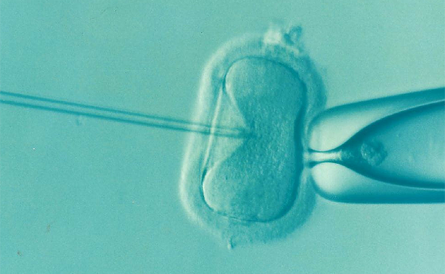 IVF example