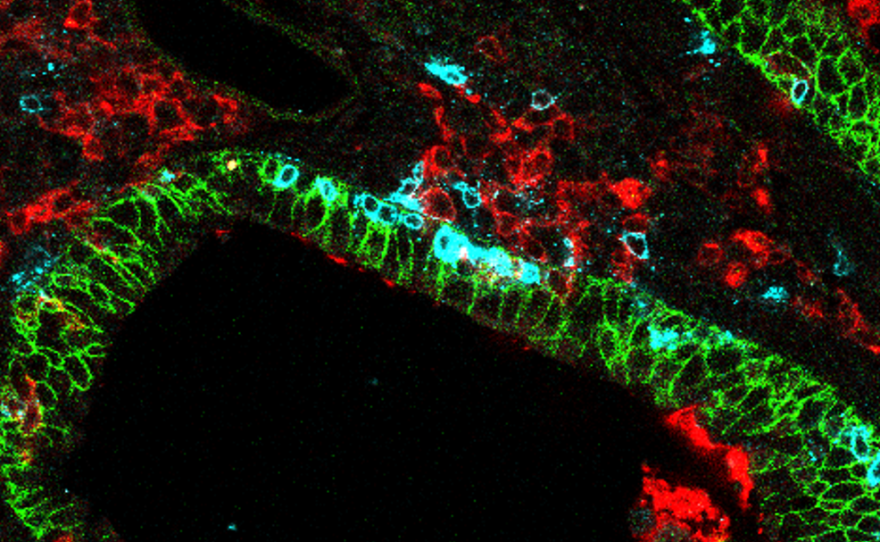 Lung-specific CD8 killer T cells, highlighted in blue, is shown within lung tissue, represented by the green in the image above, June 26, 2020.