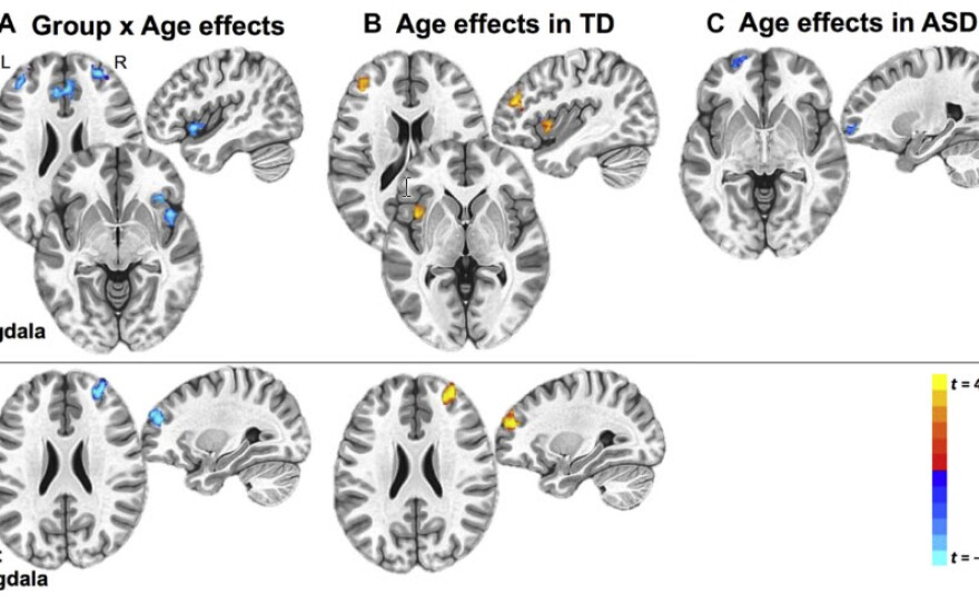 Brain scans show strong connectivity, marked in orange, between the amygdala and prefrontal cortex in typically developing children and weak connectivity, marked in blue, in children with autism.