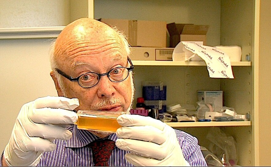 Dr. James McKerrow stands in the UCSD drug discovery lab holding a flask of liquid containing the parasite that causes amebiases, on August 20, 2015.